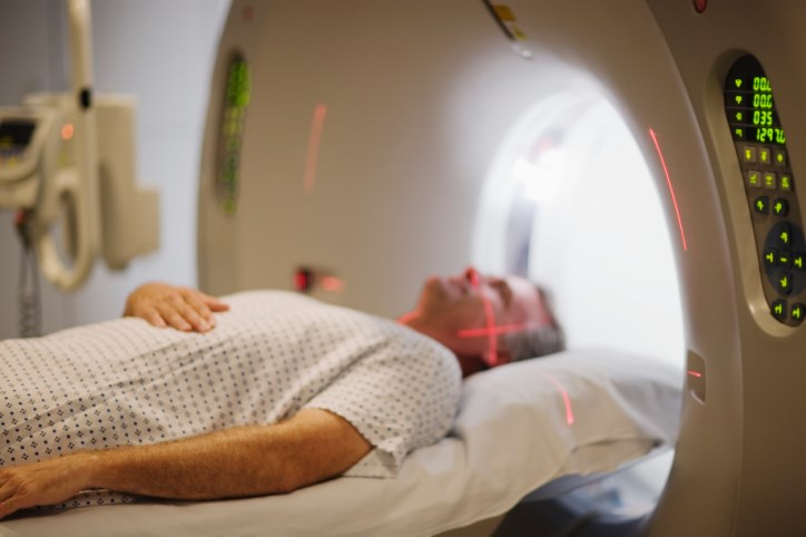 Donepezil May Improve Several Cognitive Functions After Brain Irradiation