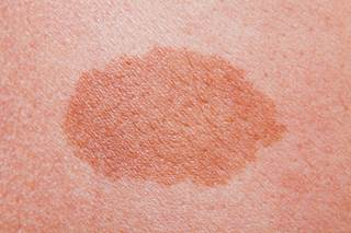 Itchy Rash on Back - Causes, Symptoms, Treatment