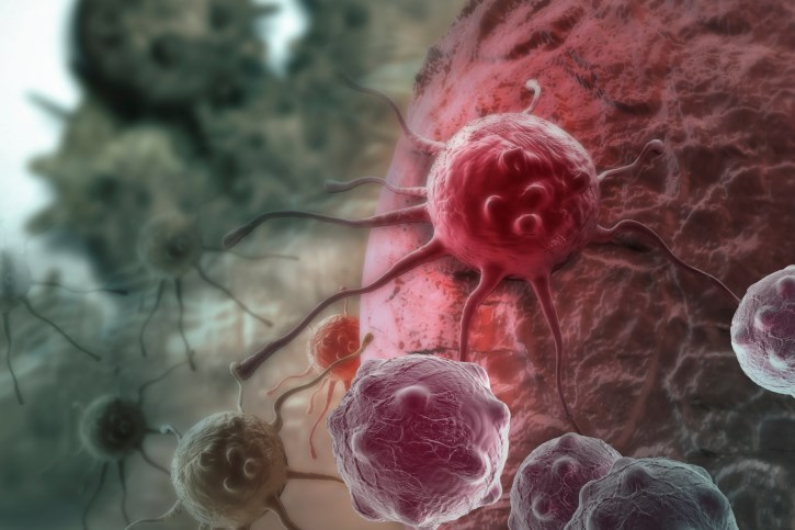 First-in-Human Trial CAR T Cell Trial Induces Multiple Myeloma Remissions