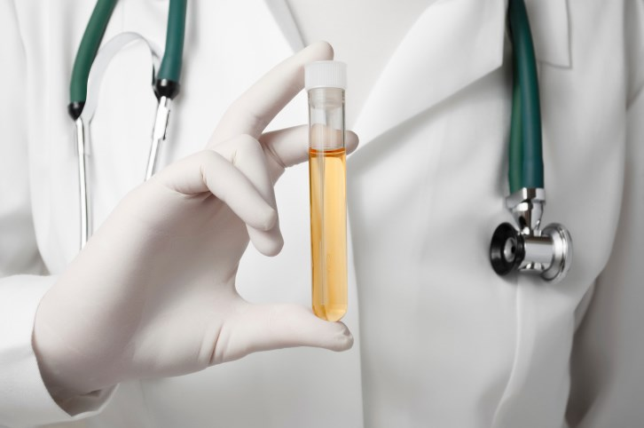 Urine Test for Kidney Cancer Showing Promise