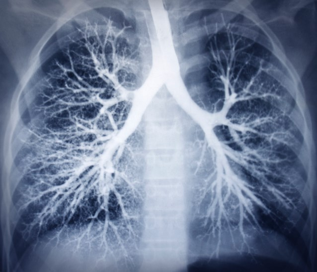 FDA Approves Gefitinib As First-Line Treatment for EGFR+ Lung Cancer