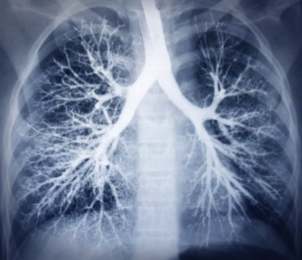 Concurrent Chemoradiotherapy Should Remain Standard of Care for Locally Advanced NSCLC