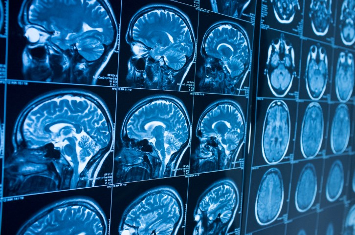 Researchers develop a model to predict which patients are more likely to harbor brain metastases at cancer diagnosis.
