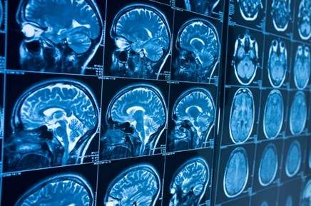 Immunotherapy Timing and Variety Important Following Radiotherapy for Patients With Melanoma Brain Metastases