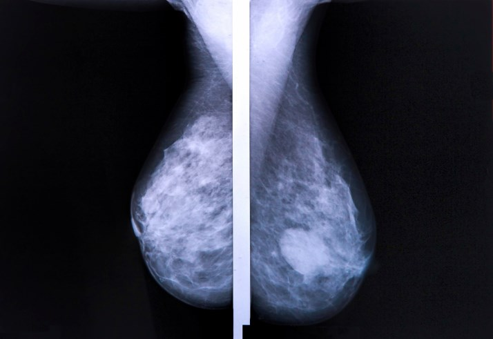 PAM50, Subtype May Identify Node-Positive Breast Cancer