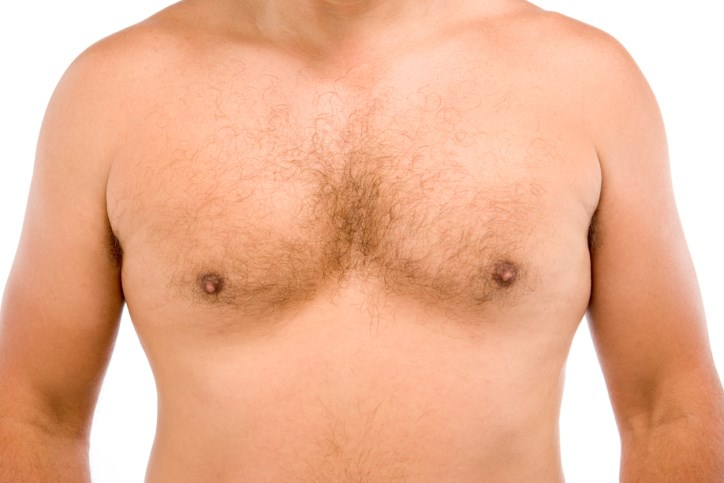 The 1%: Unraveling What Drives Breast Cancer in Males