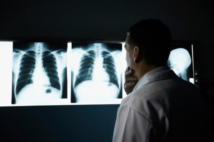 Bone-metastatic Cancer: Zoledronic Acid and Skeletal Events