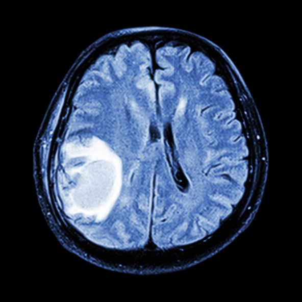 Height, but not body mass index, may be associated with risk of glioblastoma multiforme, the most aggressive form of brain cancer, and other glioma subtypes.