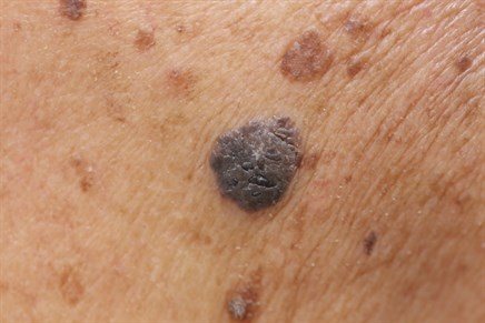 Factors for MAPK Inhibitor Treatment Outcomes in Melanoma Identified