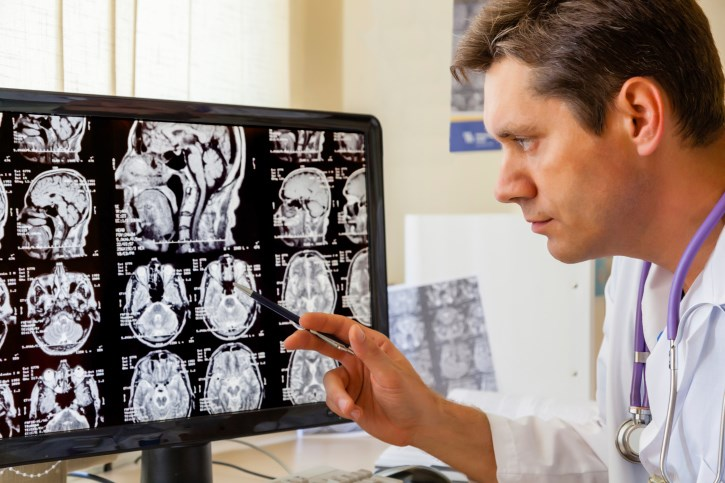 Less Cognitive Deterioration With Radiosurgery Among Patients With Brain Metastases