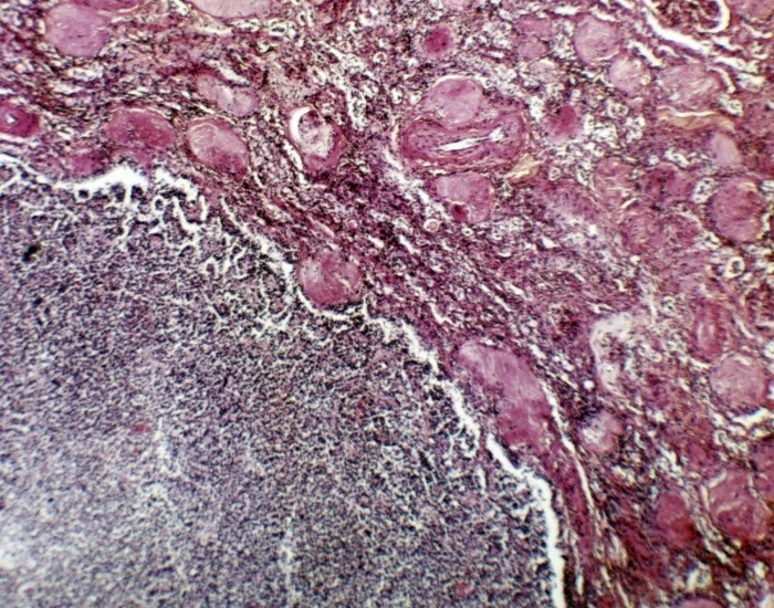 ASPEN Compares Sunitinib, Everolimus in Metastatic Non-Clear Cell Renal Cell Carcinoma