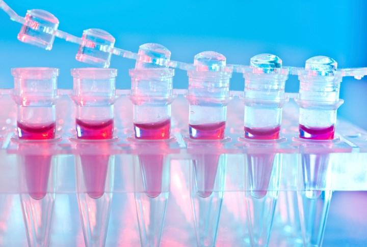 Biggest predictors of survival following hematopoietic transplantation are donor age and donor-recipient human leukocyte antigen-match.
