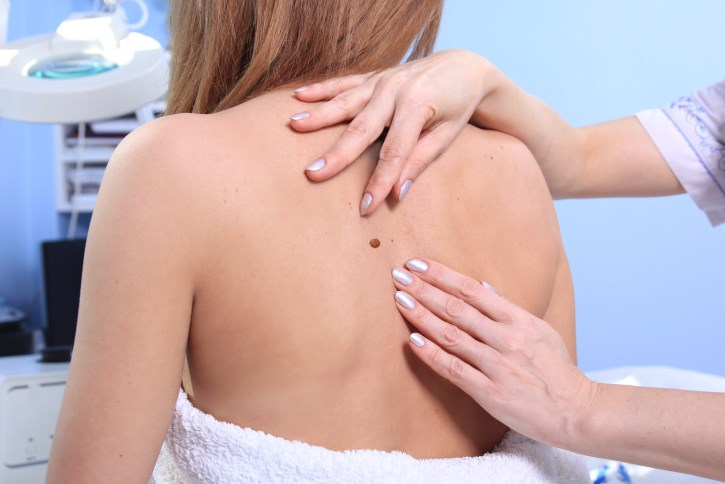 Partner-assisted Skin Exams Benefit Some More Than Others