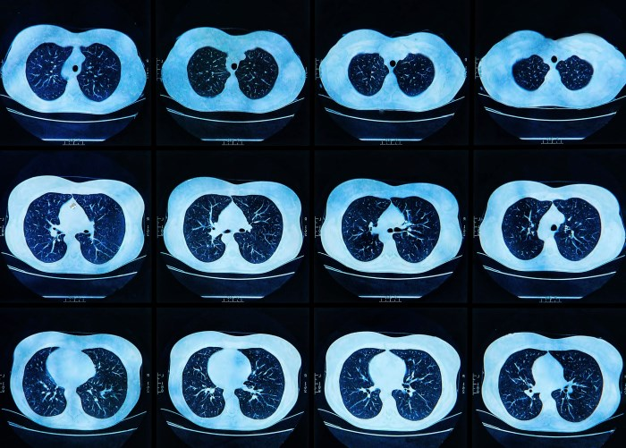 Study finds lung cancer patients miss critical diagnostic tests and often wait too long for treatment.