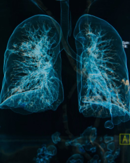 Patients with non-small cell lung cancer who received intensity-modulated radiation therapy may better tolerate chemotherapy.