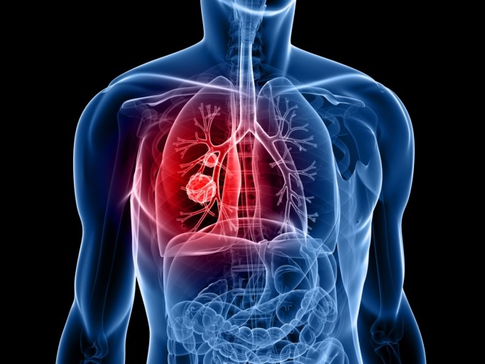 The FDA has approved pembrolizumab (Keytruda) for the treatment of patients with metastatic NSCLC whose tumors express PD-L1.