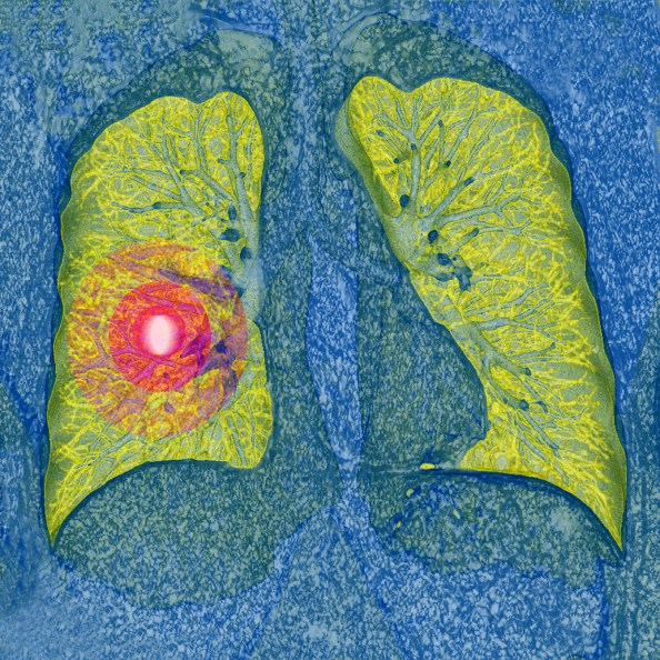 Patients with lung cancer who have undergone a negative low-dose CT prevalence screening may have a lower incidence of lung cancer-specific mortality.