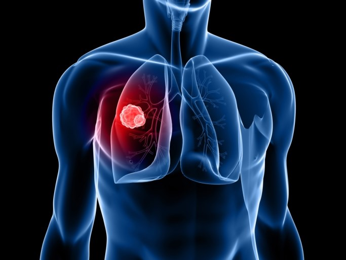 Alectinib Beats Crizotinib in ALK-positive Non-small Cell Lung Cancer