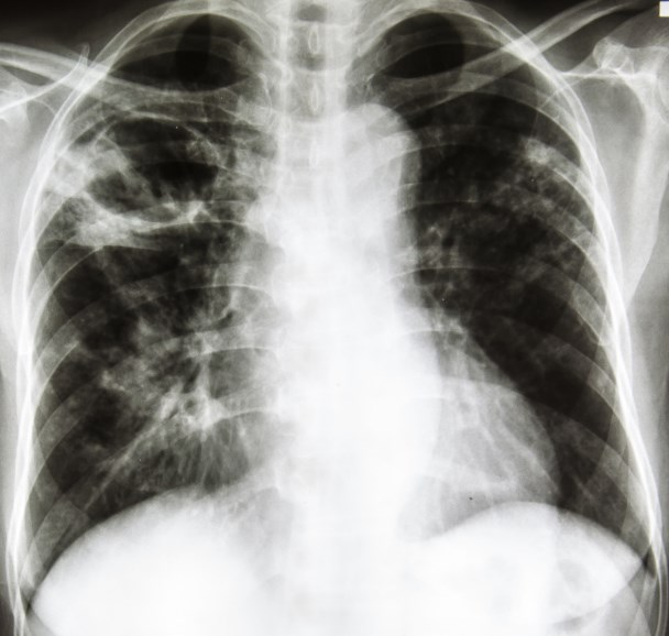 Assessing Suicide Risk in Patients With Lung Cancer