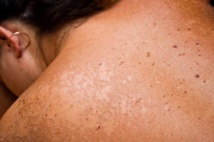 Cobimetinib Improves Overall Survival of Patients With Advanced Melanoma