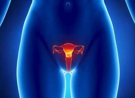 Niraparib Expanded Access Program Opened for Women With Ovarian Cancer