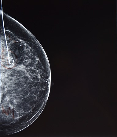 Updated Recommendations for Intraoperative Radiation Therapy in Breast Cancer