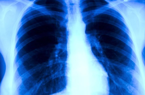 Vandetanib Active in RET-rearranged Advanced NSCLC