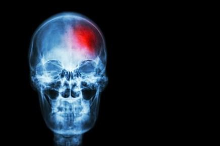 The Next Frontier: Radiotherapy Plus Immunotherapy for Melanoma Brain Metastases