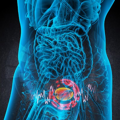 FDA Approves Durvalumab for Relapsed/Refractory Urothelial Carcinoma