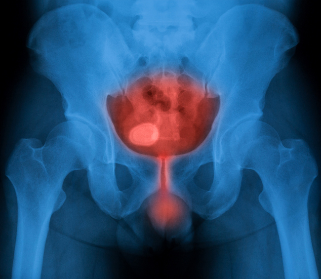 Stones In Bladder Natural Treatment