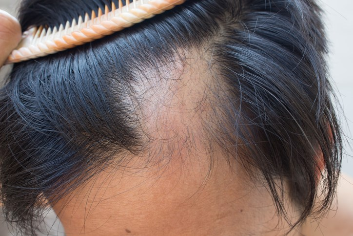 Scalp cooling may prevent up to half of hair loss for patients receiving chemotherapy for breast cancer.