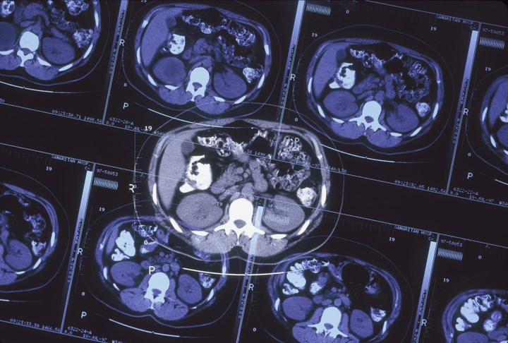 Tumor Treating Fields May Improve Glioblastoma Outcomes
