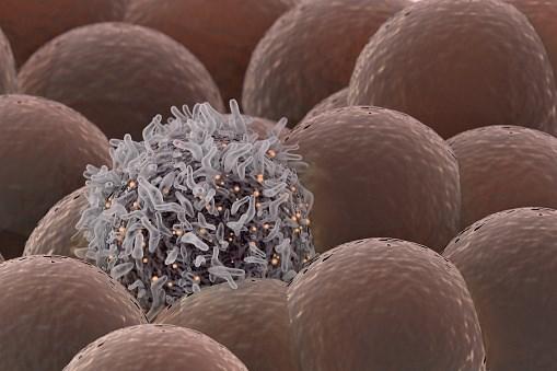 FDA Grants Cemiplimab Breakthrough Therapy Designation for Cutaneous SCC