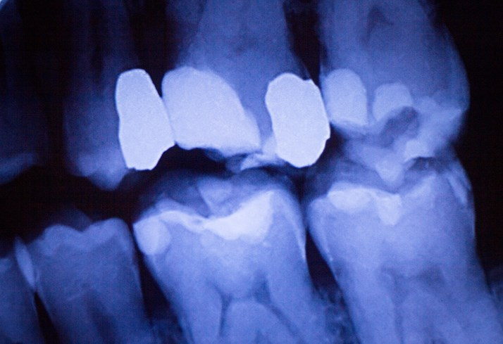 More studies are needed to determine the association between periodontal disease and non-Hodgkin lymphoma.