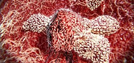 Pembrolizumab Demonstrates Safety and Efficacy in Small-cell Lung Cancer