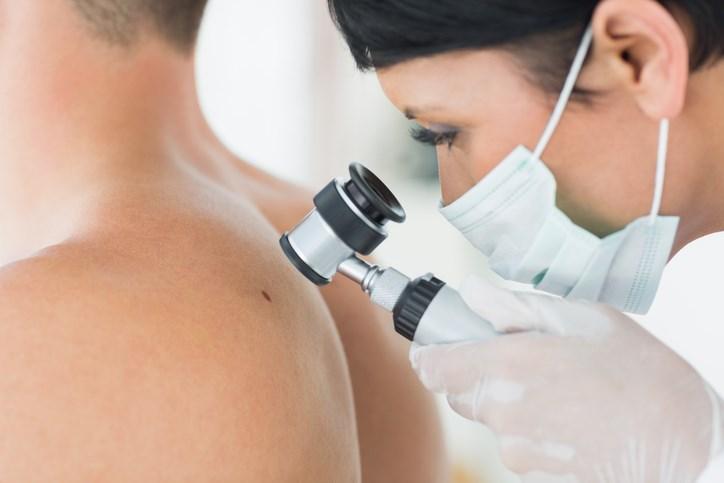 Avelumab: A Landmark Approval in Metastatic Merkel Cell Carcinoma