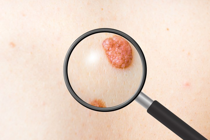 This PD-1 inhibitor is effective for treating melanoma, though it can be highly toxic and there is a lack of biomarkers for predicting a response.