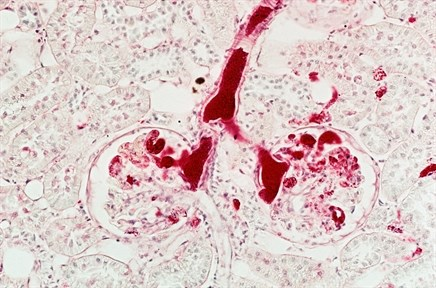 Telomere Length May Predict Renal Cell Carcinoma Risk in Patients with VHL