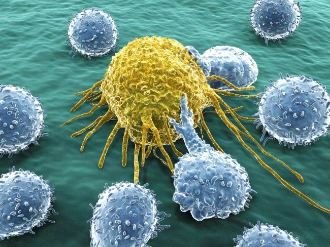 Cancer History Common in Newly Diagnosed Patients