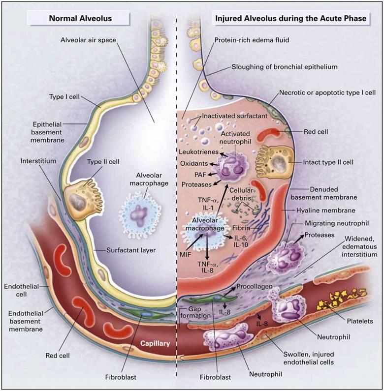 Acute Respiratory Distress Syndrome Acute Hypoxemic