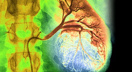 Nivolumab Plus Ipilimumab May Improve 2-Year Quality of Life in Advanced Renal Cell Carcinoma