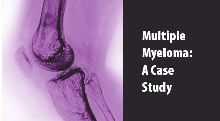 Optimal Induction Therapy for Multiple Myeloma