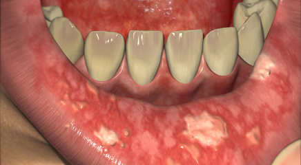 Oral Mucositis In Cancer Patients Treatment Update