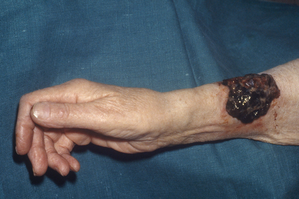 Melanoma on the Arm