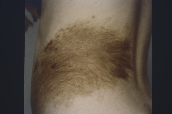 Melanoma in the Loin