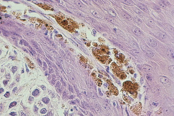 Melanoma Skin Cells