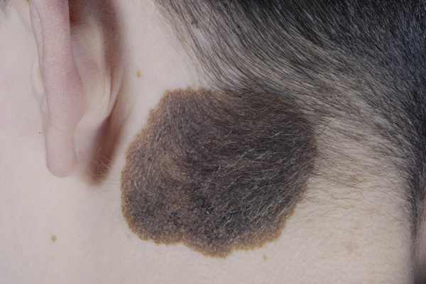 Melanoma of the Neck