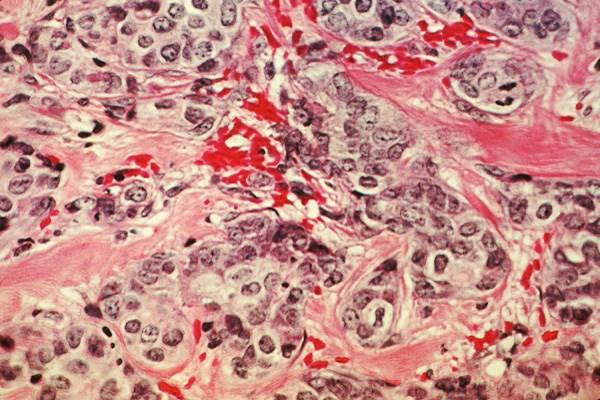 Vitamin D May Improve Breast Cancer Survival