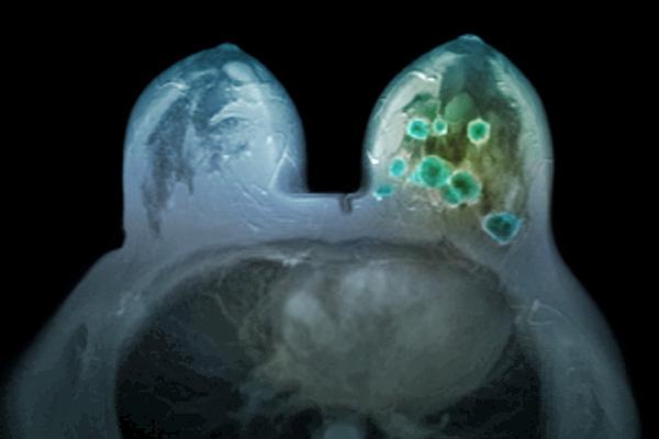 Centrally Necrotizing Carcinoma