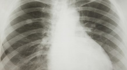 After accounting for co-occurring respiratory diseases, chronic bronchitis, emphysema up risk.